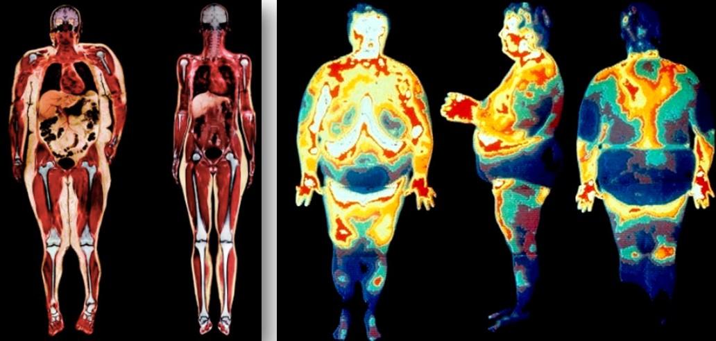 Как сжечь жир с внутренних органов