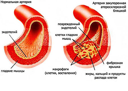 холестерин липопротеинов низкой плотности очень высокий