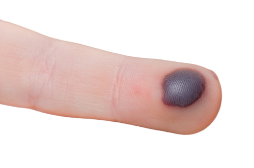 bloodblister-shutterstock-161739158-webonly